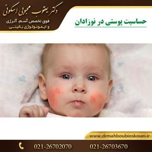 حساسیت پوستی در نوزادان